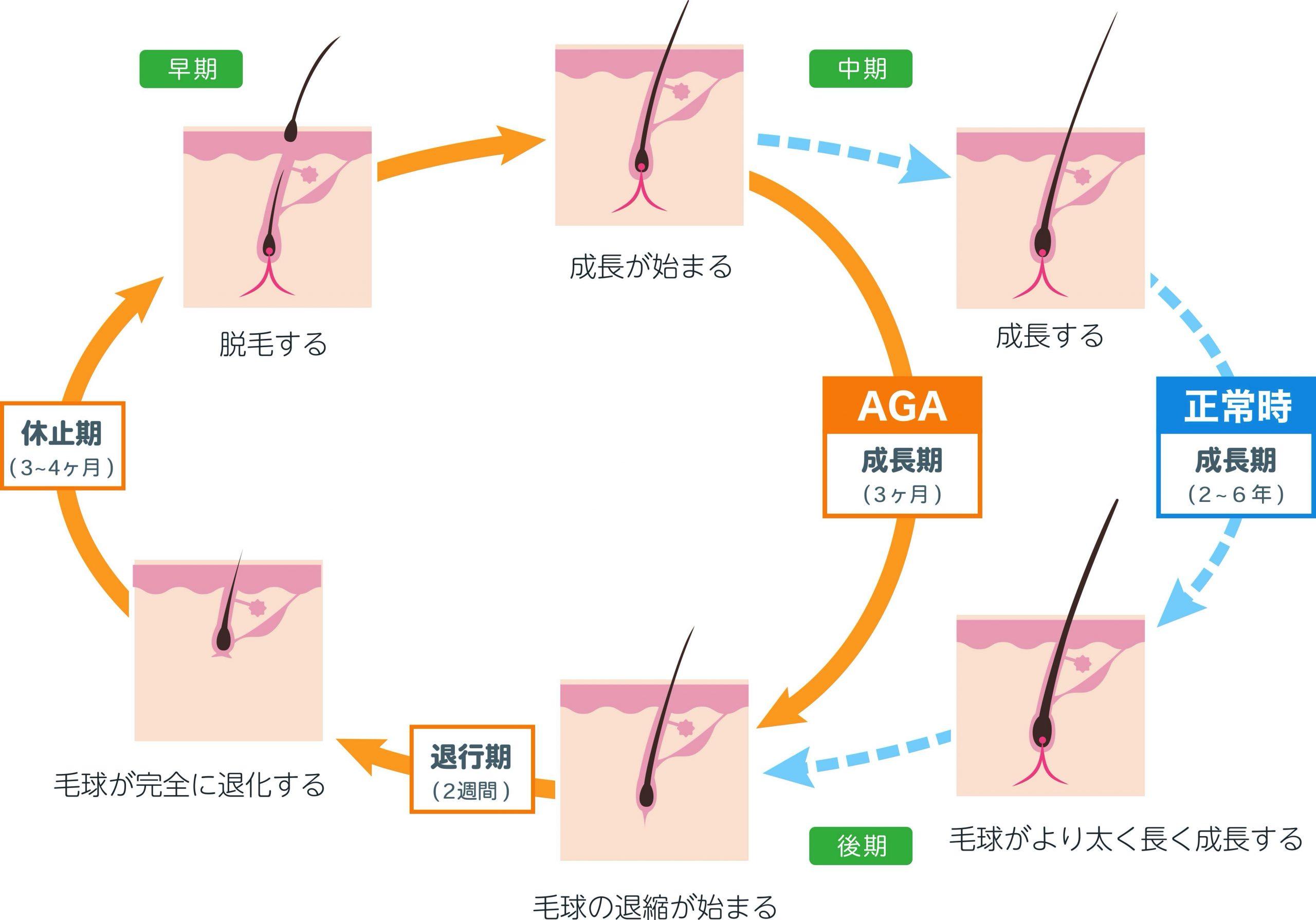 髪の毛のヘアサイクル(成長周期)